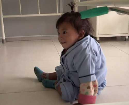 Hiếm gặp: Bé trai 2 tuổi mọc thêm tay ở... lưng - 4