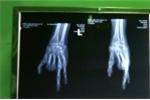 Lấy 2 ngón chân ghép thành ngón tay cho cô gái trẻ