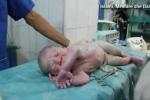 Kỳ diệu giây phút em bé ngưng tim trong bụng mẹ do trúng bom được bác sĩ hồi sinh