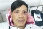 Dân tố bị công an phường đánh bầm tím mặt