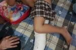 Học sinh lớp 2 gãy đôi xương đùi khi chơi trong sân trường: Phụ huynh đặt nghi vấn