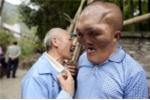Người đàn ông Trung quốc mang gương mặt 'người ngoài hành tinh'