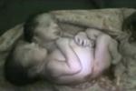 Bé trai hai đầu tử vong sau 30 giờ chống chọi với tử thần