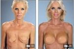 Diễn viên Hollywood bị virus ăn mất ngực