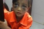Bé gái bị cô giáo đánh bầm dập vì viết bài chậm