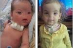 Bé gái 2 tuổi sinh ra không có mũi