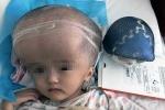 Ghép thành công họp sọ 3D cho cô bé có đầu 'như sắp nổ tung'
