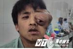 Xót xa người đàn ông mắt lòi ra khỏi tròng vì khối u khổng lồ