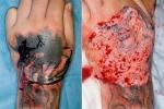 Xăm hình: Da thịt lở loét ghê người