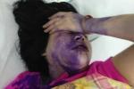 Người phụ nữ bị đánh đập, đổ mực vào mồm giữa phố