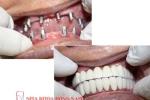 Dental Implant - Phương pháp trồng răng giả hiện đại