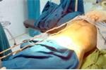 Dị vật dài 1,4m trong bàng quang bệnh nhân