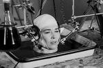 Bệnh viện Việt Đức tìm người muốn ghép đầu