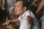 CSGT bắn người vi phạm: Cư dân mạng ủng hộ cảnh sát