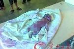 Tranh cãi quanh vụ bé sơ sinh chết cháy trong viện