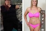 Bà mẹ 3 con phẫu thuật thẩm mỹ để mặc bikini