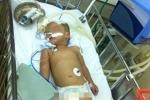 Ngã từ ban công, bé 3 tuổi chấn thương sọ não