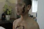 Kẻ cạo trọc đầu 'cô gái mặt rết' bị tạm giam 2 tháng