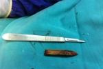 Rút thanh tre 5 cm nằm trong sọ 9 tháng
