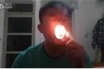 Hãi hùng gã trai nuốt chửng 10 điếu thuốc lá