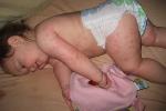 Nhiều trẻ bỏ tiêm vaccine, bệnh sởi bùng phát