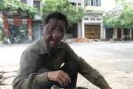 Nỗi đau của người 40 năm mang khuôn mặt 'quỷ dữ'