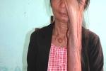 Người phụ nữ có khối u dài 40cm được cứu thế nào?