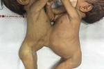 Cận cảnh ca phẫu thuật tách rời 2 bé dính liền bụng