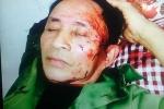 Cán bộ xã đánh ông già 68 tuổi rách mặt, be bét máu