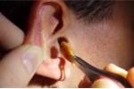 Cận cảnh lấy ráy tai khổng lồ từ tai một người đàn ông