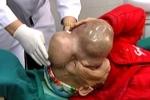 Clip: Phẫu thuật thành công khối u quái gần 4kg trên mặt người phụ nữ