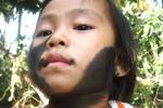 Một bé gái mọc đầy lông ở cổ