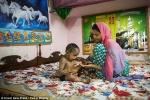Đáng thương bé gái 2 tuổi mắc bệnh lạ, da mọc vẩy như thằn lằn