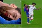 Video: Messi đổ máu sau pha va chạm với Marcelo
