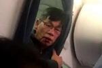 Bác sỹ gốc Việt bị đánh dã man, lôi khỏi máy bay nói thương tích đầy mình