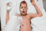 Thương tâm cậu bé ung thư cầu xin mẹ cắt bỏ đôi tay để thoát đau