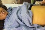 Bệnh viện K: Bệnh nhân đang mổ vẫn tỉnh táo nói chuyện với bác sĩ