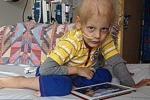 Bị khối u ung thư, bác sĩ 'phán' táo bón