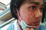 Bé gái 7 tuổi bị chảy máu khắp mặt mỗi khi nhức đầu