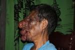 Xót xa người đàn ông mang gương mặt dị dạng đi ăn xin nuôi vợ tàn tật