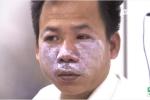 Cách xử trí vết viêm da do tiếp xúc với kiến ba khoang
