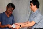 Người mang khuôn mặt dị dạng rưng rưng nhận món quà nghĩa tình từ bạn đọc VTC News