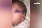 Anh: Bác sỹ sản rạch dao vào đầu trẻ khi mổ đẻ