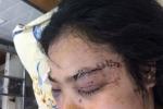 Cô gái bị 20 thanh niên truy sát, cắt tai: Giao Bộ Công an vào cuộc