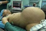 Người đàn ông mang khối u 15kg trong dạ dày
