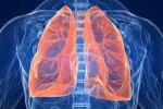 Môi trường ô nhiễm, dân Thủ đô nên ăn gì để tránh ung thư phổi?