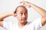 Bất ngờ 5 nguyên nhân gây hói đầu ở nam giới