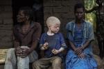 Bí ẩn mục đích săn người bạch tạng dã man ở châu Phi