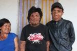 3 cha con cùng mắc bệnh 'mặt quỷ' ước mơ được mang dáng hình người thường