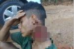 Bị chém gần lìa cổ, chàng trai giữ đầu khỏi lệch trong rừng cả đêm chờ cứu hộ